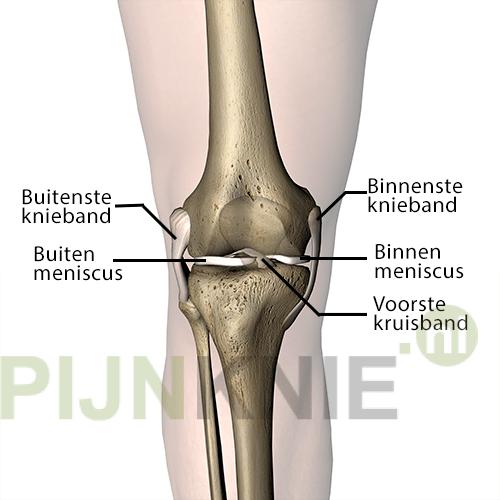 Kniebanden – Pijn Knie