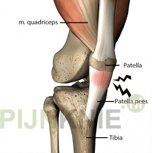 patella-tendinopathie